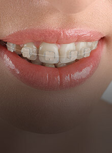 Closeup of smile with tooth colored braces